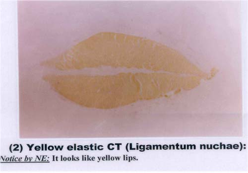 yellow elastic tissue Connective tissue staining kits and solutions for blood and hematological specimens from electron microscopy sciences.
